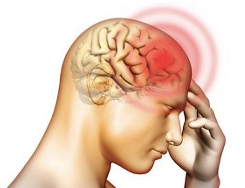 Chấn thương sọ não và Alzheimer gây suy giảm nhận thức tương tự nhau