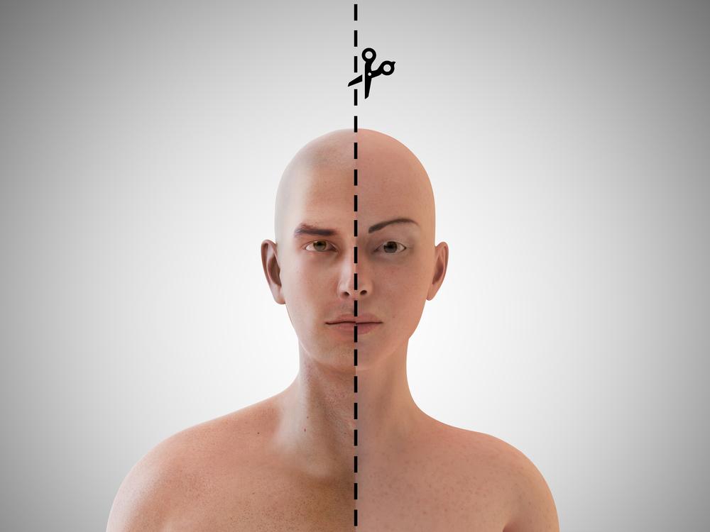 Phẫu thuật chuyển giới làm tổn thọ 20 năm?