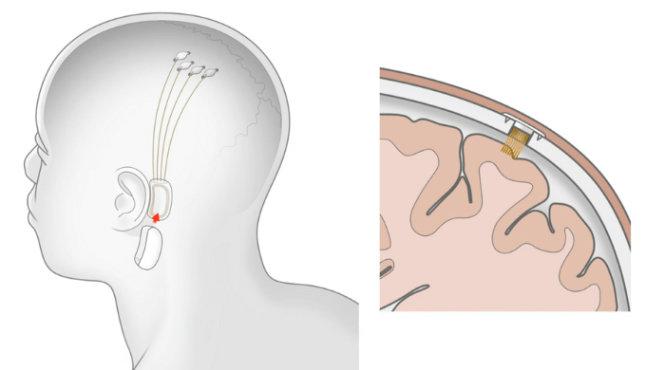 Bộ não gắn chip sẽ thành hiện thực năm 2020?