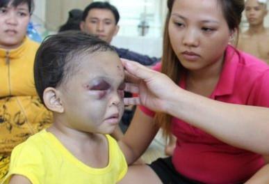 Trẻ bị chấn thương đầu - Trường hợp nào cần cấp cứu?