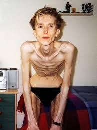 Hình ảnh đáng sợ của bệnh nhân nam mắc bệnh chán ăn