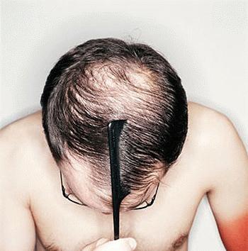 Bệnh lạ ở Việt Nam: Sung sướng khi... vặt trụi tóc mình
