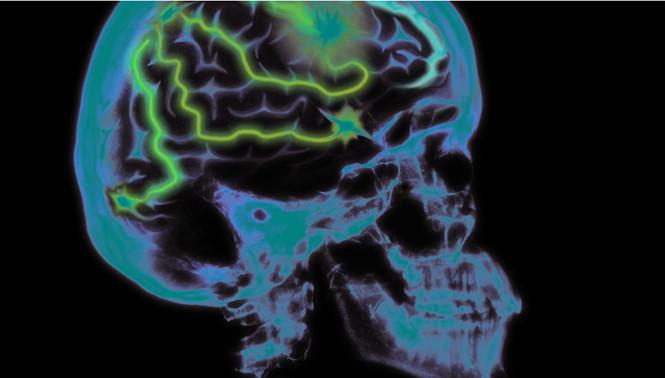 Căng thẳng quá nhiều có thể dẫn đến teo não