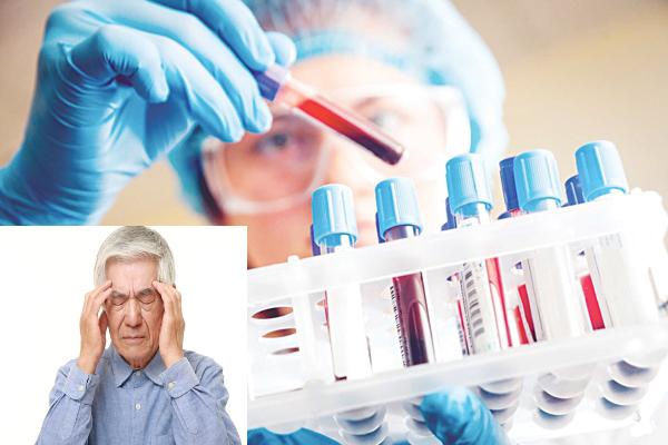 Xét nghiệm máu phát hiện sớm bệnh Alzheimer